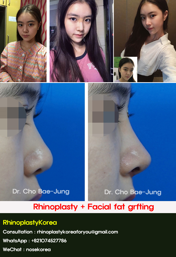 rhinoplasty before & after in Korea