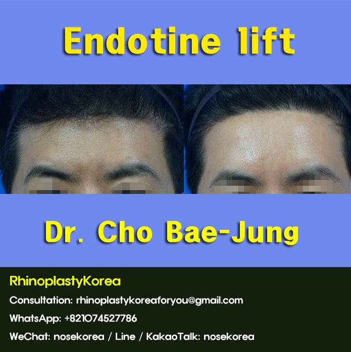 Endotine lift