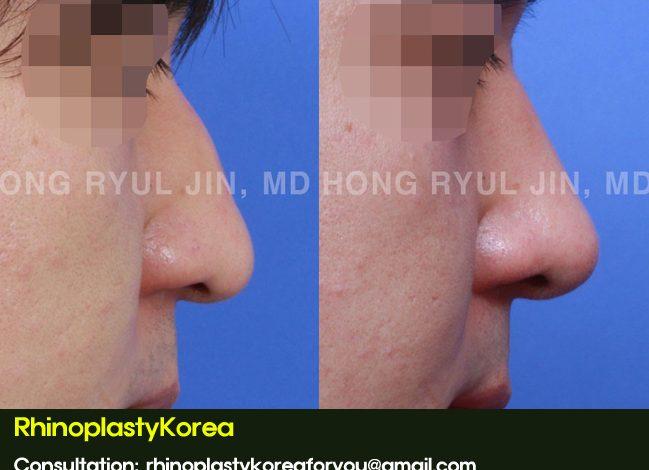 Mild nasal hump and droopy nasal tip correction