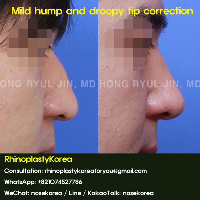 Mild nasal hump and droopy nasal tip correction