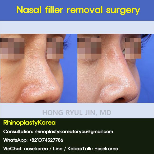 Nasal filler removal surgery