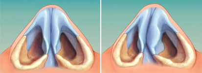 Nasal septum deviation