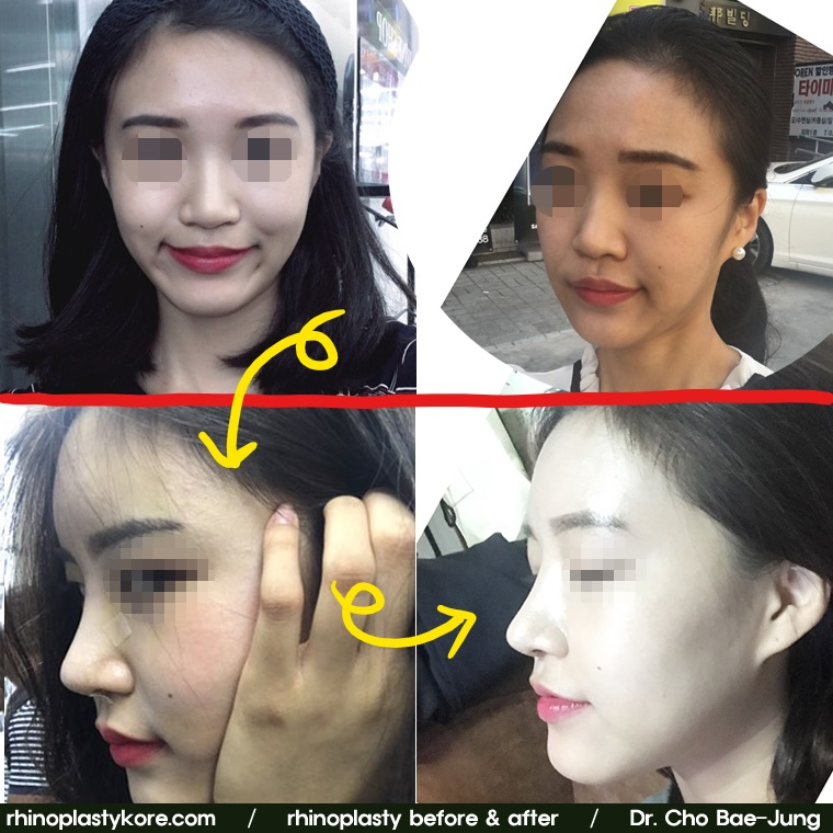 Rhinoplasty Korea before & after photos