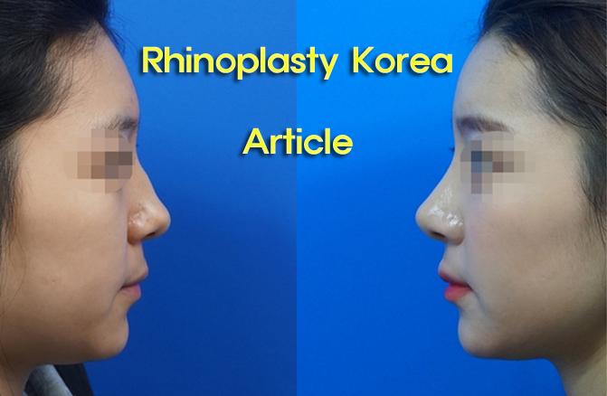 rhinoplasty article