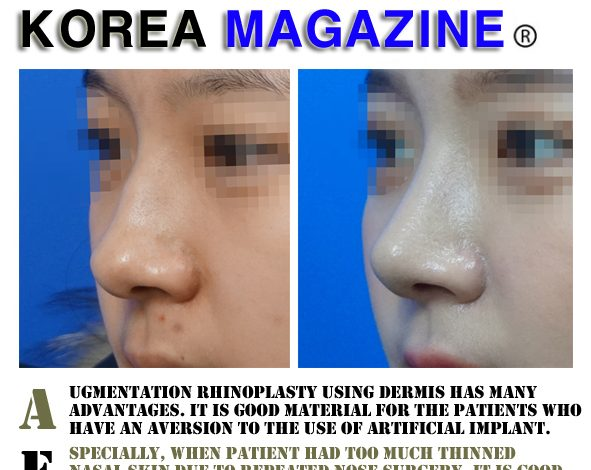 Before and after photos of rhinoplasty using dermis