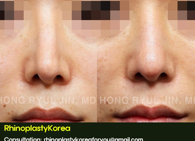 Naturalization of the nose with silicone removal