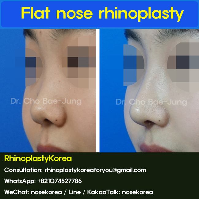 flat nose rhinoplasty