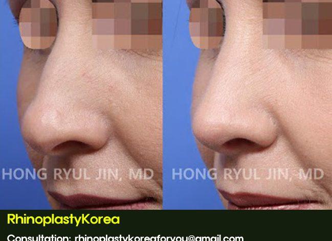 Nose job bump removal