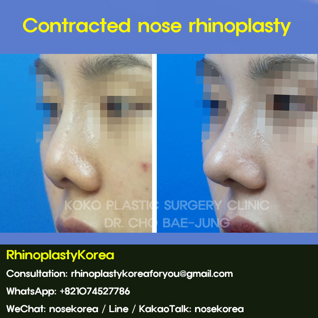 Contracted Nose Rhinoplasty