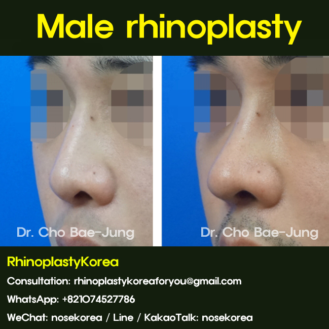 Male rhinoplasty in Korea