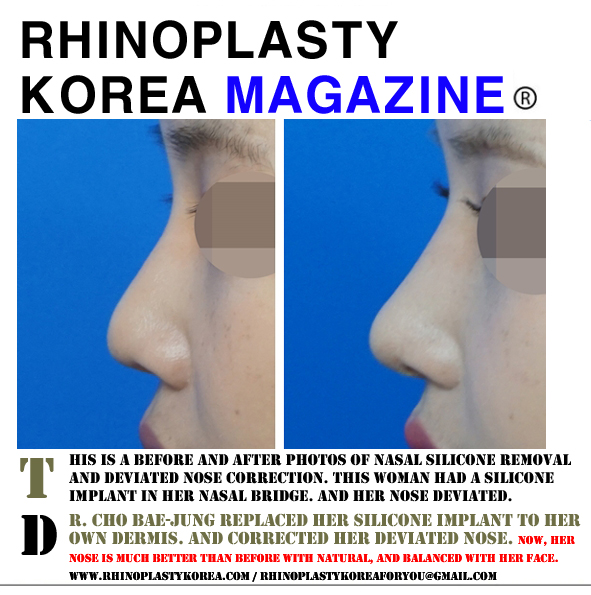 Nasal silicone implant removal and deviated nose correction
