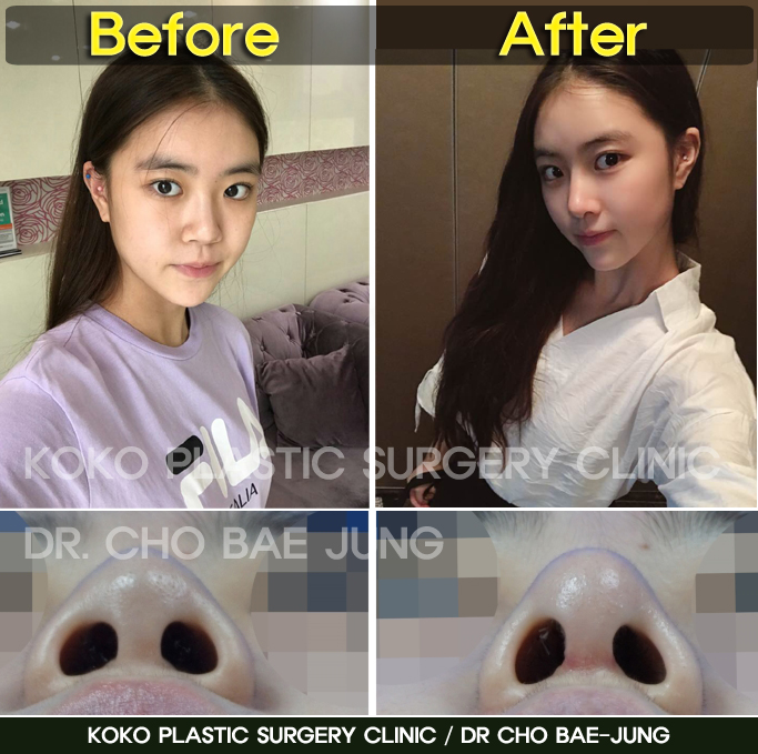 Before & After photo of rhinoplasty in Korea