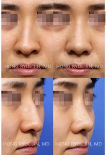 Deviated & Hump nose correction
