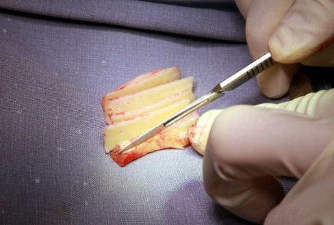 Carving the rib cartilage