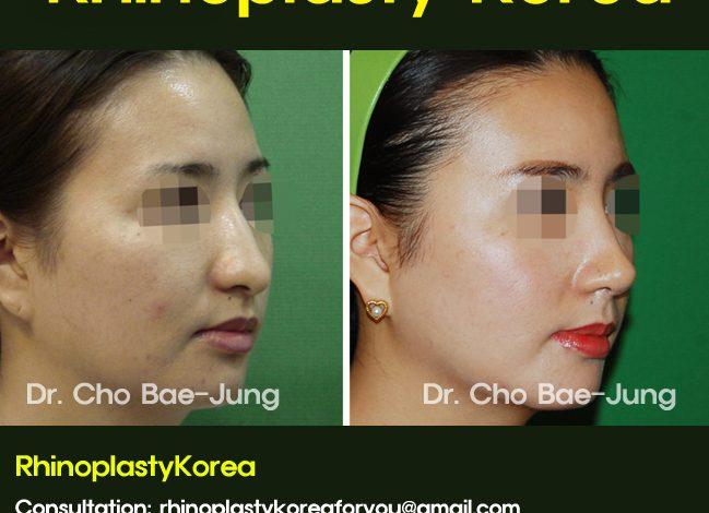 Long nose rhinoplasty