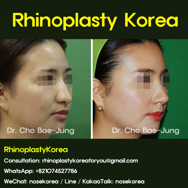 Long nose rhinoplasty