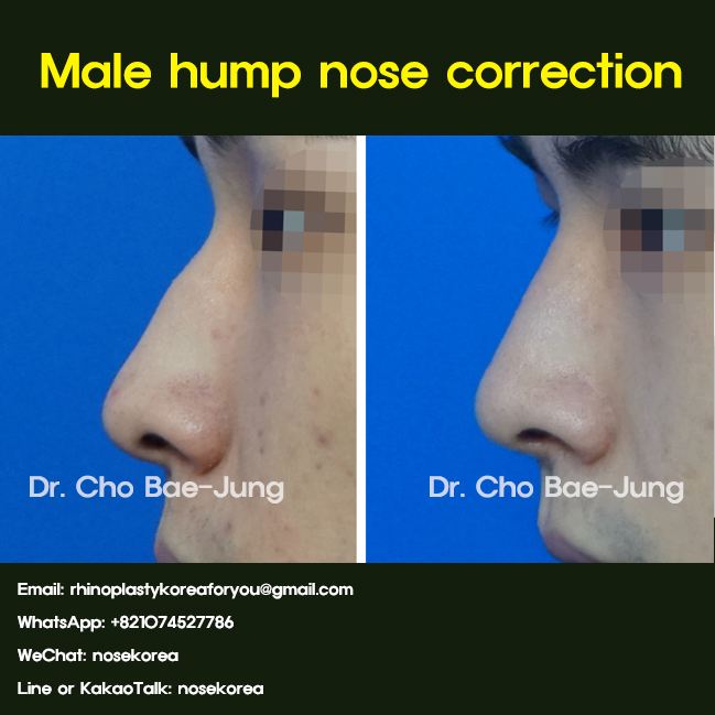 Male hump nose correction