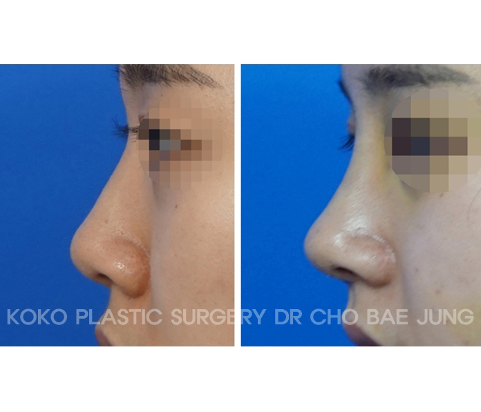 This is the photo after short and wide nose rhinoplasty