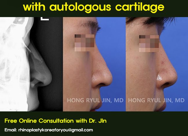 replacing nasal silicone implant with autologous cartilage