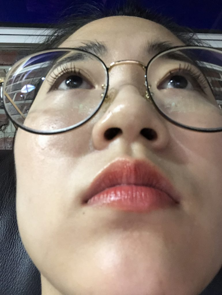 short and wide nose and angry look. short nose rhinoplasty in Korea