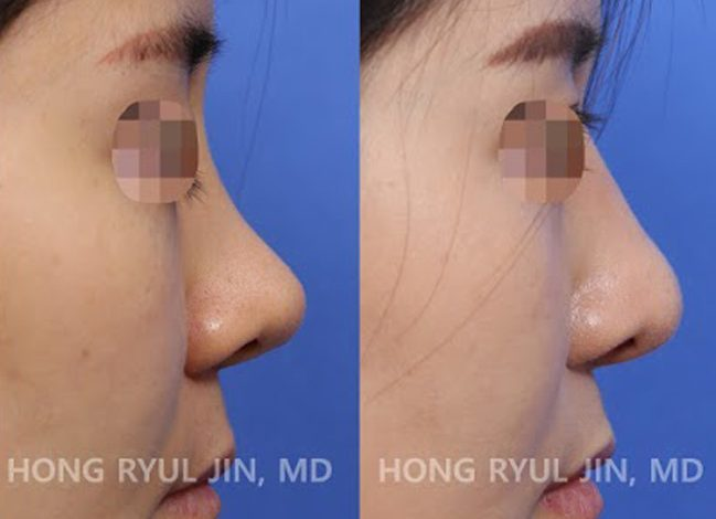 L shaped silicone removal and revision rhinoplasty
