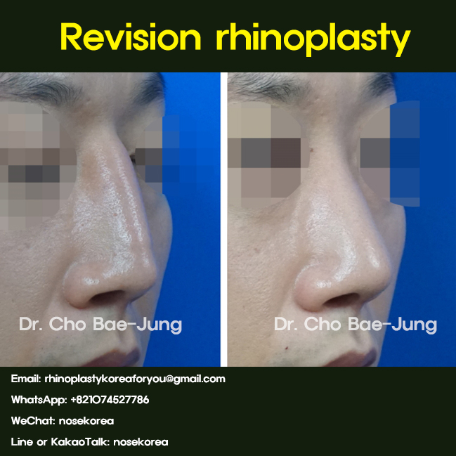 Nasal filler removal and revision rhinoplasty