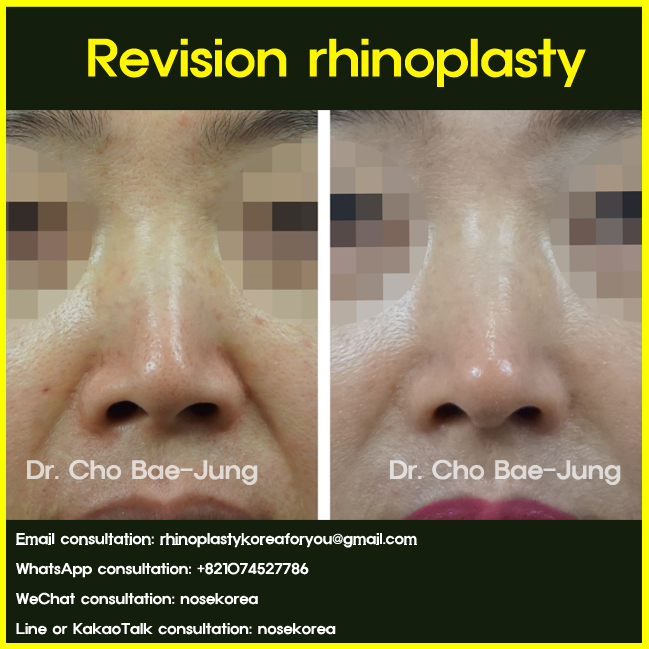 Nasal silicone removal and revision rhinoplasty