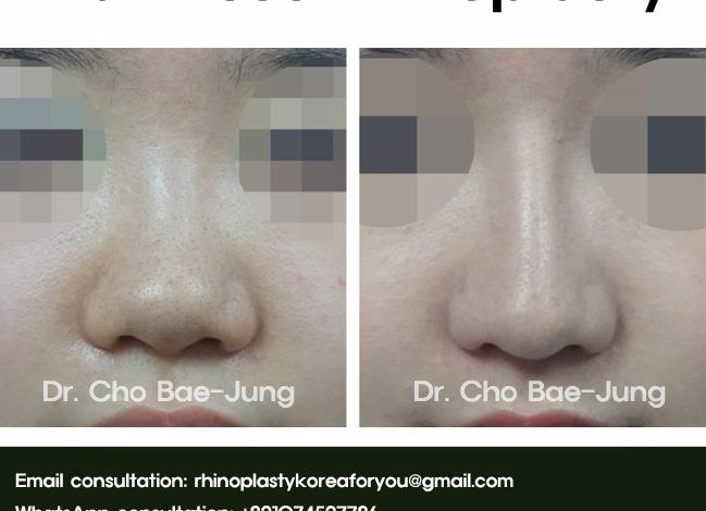 Flat nose correction with rhinoplasty