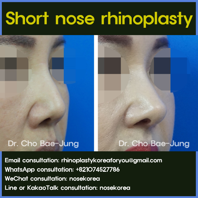 Short nose (Upturned nose) rhinoplasty