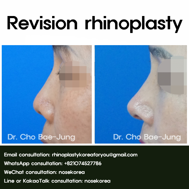 rhinoplasty Korea before & after