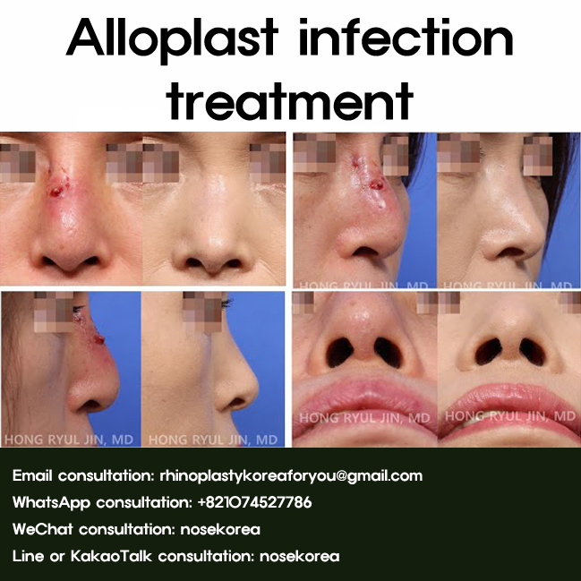 Alloplast infection treatment with Revision rhinoplasty