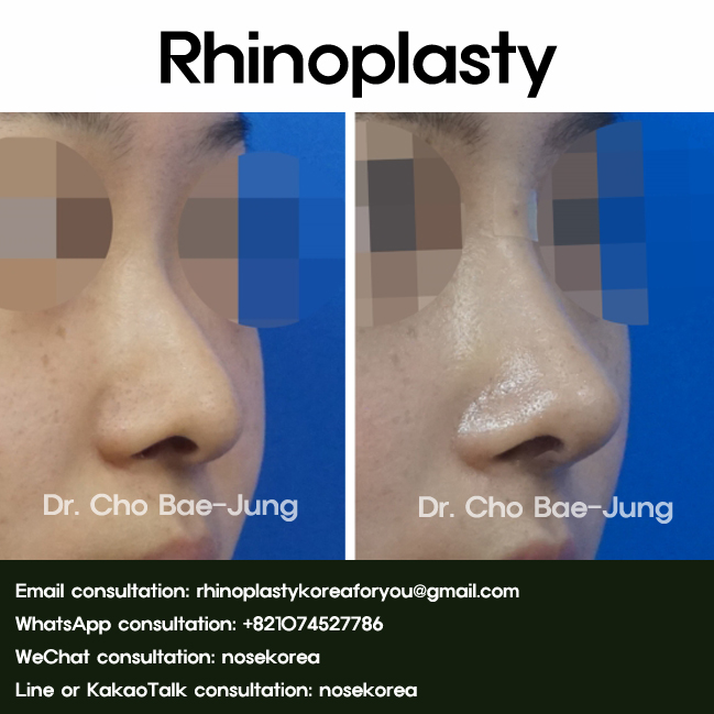 Nose-Reshaping-Surgery