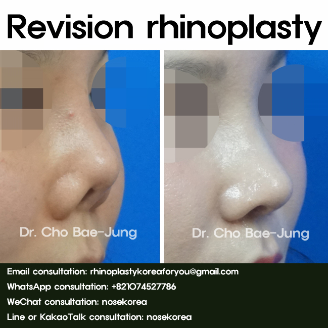 Revision-rhinoplasty-of-Nasal-contractions-2