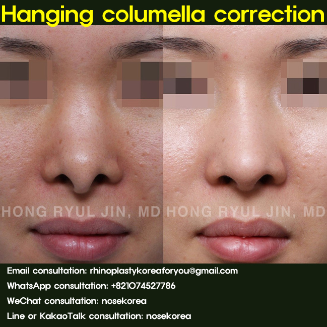 hanging-columella-correction