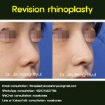 Correcting the short nose with revision rhinoplasty