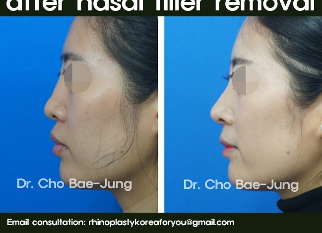 Rhinoplasty after nasal filler removal