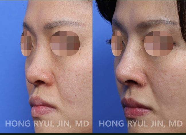 Rib cartilage rhinoplasty Korea