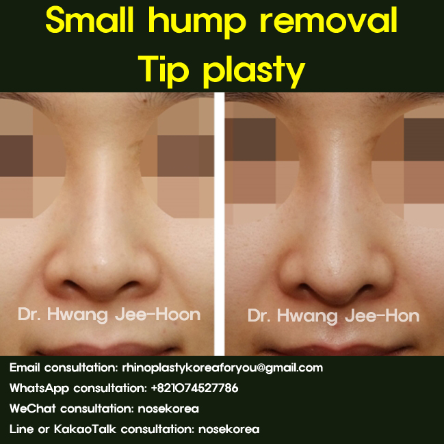 small-dorsal-hump-removal