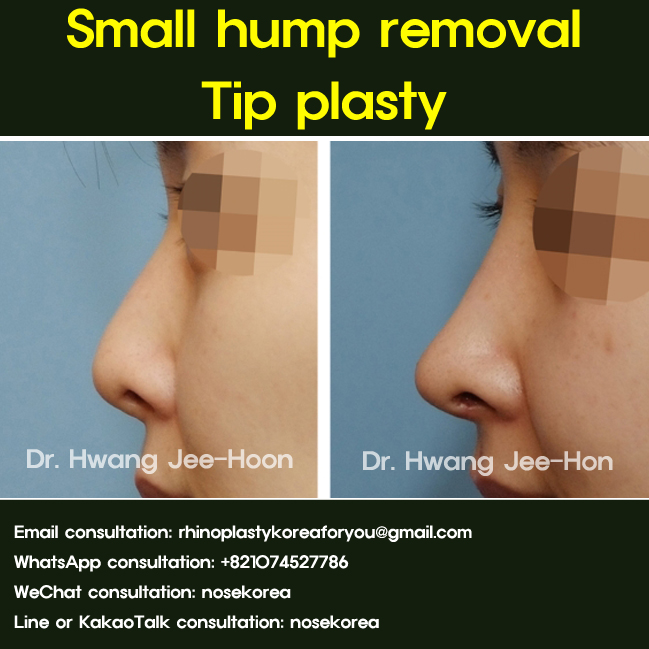 Small dorsal hump removal_side_view
