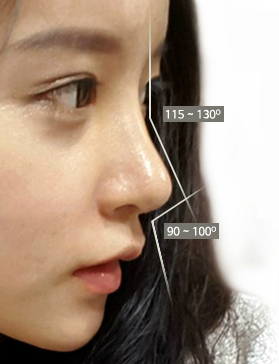 the ideal angle between nasal tip and upper lip
