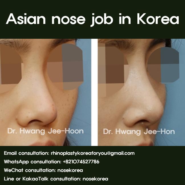 Asian nose job in South Korea