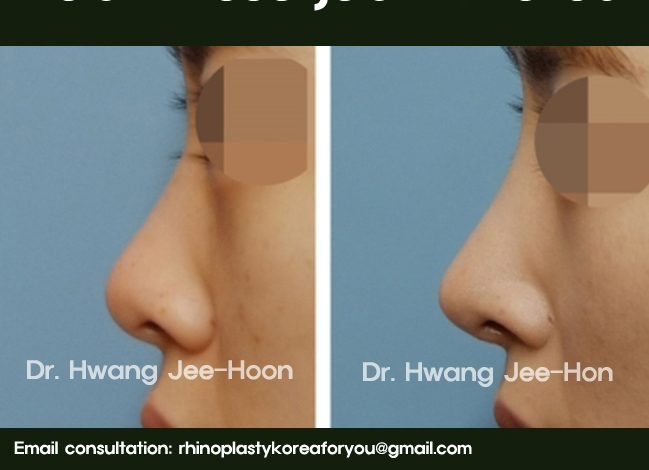 Asian nose job in South Korea
