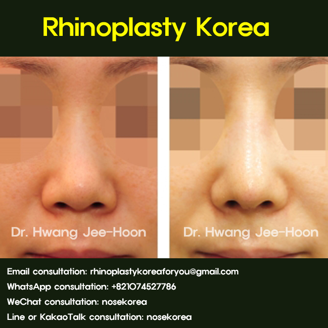 General surgical method of primary rhinoplasty