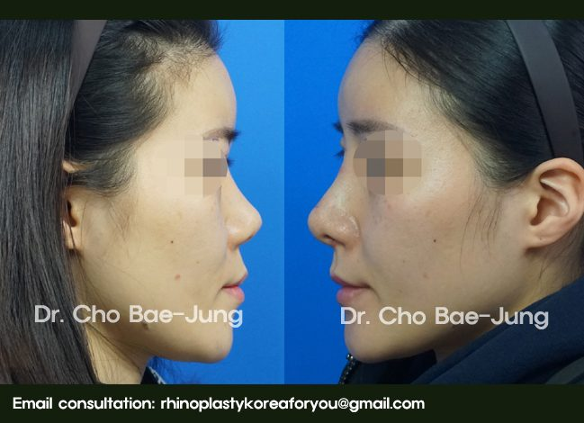 Nasal septum reconstruction with revision rhinoplasty