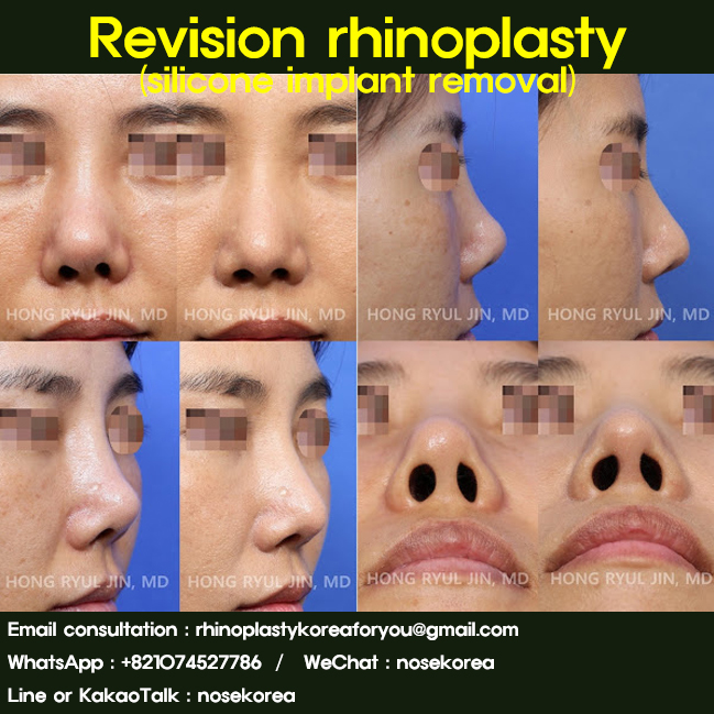 This is a revision rhinoplasty to remove her nose silicone implant conducted by Dr. Hong-Ryul Jin