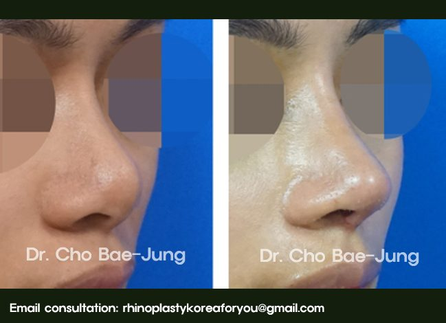 Short nose tip correction with nose job