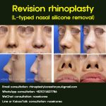 Why L-shaped silicone implants are not used for rhinoplasty