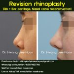 Nasal valve reconstruction with revision
