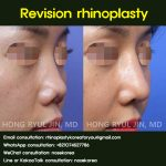 Revision rhinoplasty contracted nose