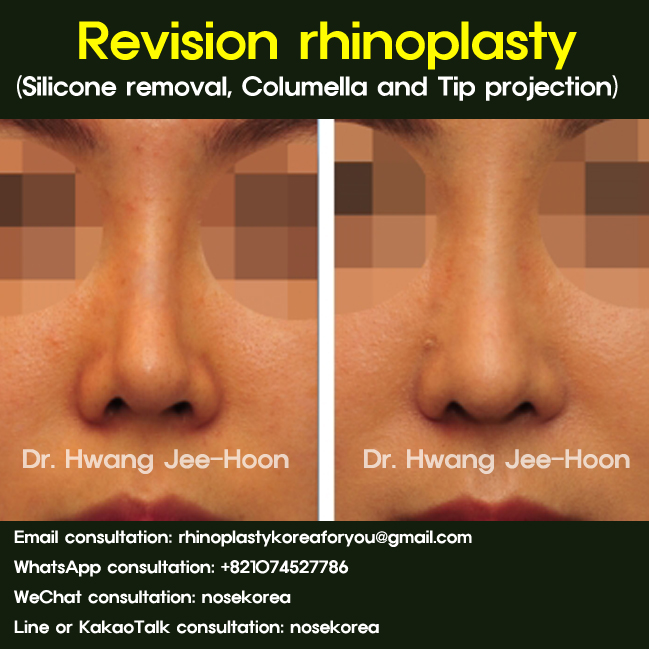 Revision rhinoplasty silicone exchange tip elongation